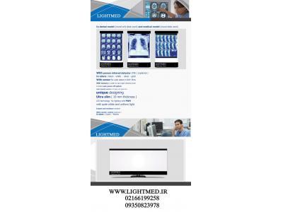 چراغ نگاتوسکوپ(نگاتسکوپ ) پزشکی و دندانپزشکی دیجیتال